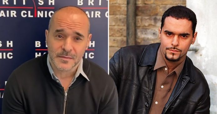 EastEnders' Michael Greco undergoes hair transplant to correct botched job